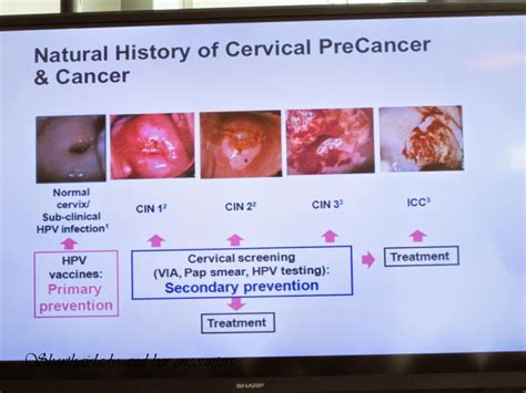 Shorthairlady & her encounters: Cervical cancer: Myths