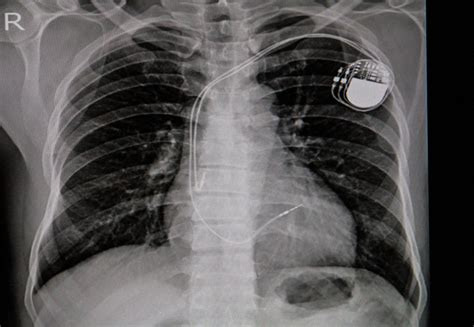 AI can improve X-ray identification of pacemakers in
